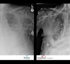 Riverain Software that Increases Visibility, Decreases Time to Confirm Placement of Lifesaving Medical Devices Receives CE Mark