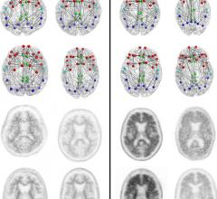 dementia imaging, clinical trial, MRI systems, RSNA 2014, alzheimer's