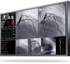 Eizo Presents a New Large-Format 4K UHD Monitor for Interventional Radiology and Endoscopy