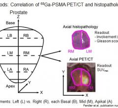prostate cancer, biopsy, PET-CT, Ga-68 PSMA, SNMMI 2016 study, Wolfgang Fendler
