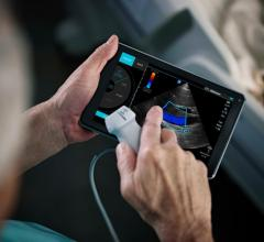 Fujifilm SonoSite Unveils SonoSite Synchronicity Ultrasound Workflow Solution