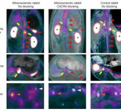 PET imaging, atherosclerotic plaque, inflammation, Ga-68-pentixafor, Technishe Universitat Munchen, Germany