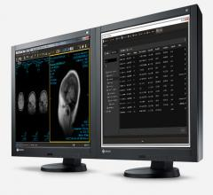 Intelerad Launches AI Initiative for Imaging Workflow Intelligence and Analytics