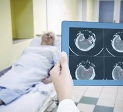 MaxQ AI Receives FDA Clearance for Accipio Ix Intracranial Hemorrhage Platform