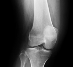 EOS imaging, Heidelberg University, University of Munich, orthopedic, X-ray