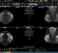 Konica Minolta Highlights New Exa Mammo Features at SBI/ACR Breast Imaging Symposium
