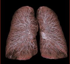 MD Anderson Study Early-stage Lung Cancer