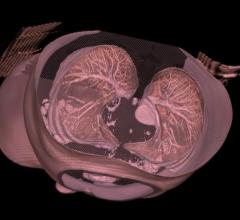 Mirada Medical and Optellum Debut AI-Based Lung Cancer Diagnosis Solution at RSNA 2017