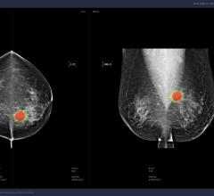 Lunit Showcases AI Solution for Breast Cancer at SBI 2019