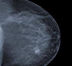 Breast Cancers Found by Mammography Do Not Regress If Left Untreated