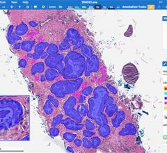 Paige Announces Clinical-grade Artificial Intelligence in Pathology