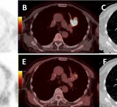 PET/CT Tracer Identifies Vulnerable Lesions in Non-Small Cell Lung Cancer Patients