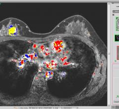Paragon Biosciences Launches Qlarity Imaging to Advance FDA-cleared AI Breast Cancer Diagnosis System