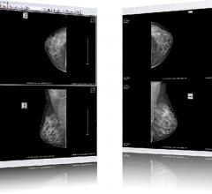 Welch Road Imaging Integrates RamSoft PowerServer RIS/PACS With openDoctor