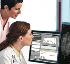 women's health rsna 2013 vue pacs carestream digital breast tomosynthesis dbt