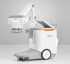 Siemens Healthineers Debuts Mobilett Elara Max Mobile X-ray