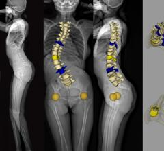 EOS imaging Receives FDA Approval for spineEOS, its online 3D Planning Solution for Spine Surgery