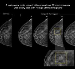 An example of breast tomosynthesis 3-D mammography detection of lesion.