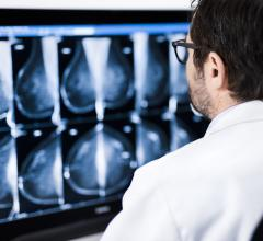 Fewer, larger individual doses of radiation lead to similar adverse effects to normal tissue after 10 years as with conventional radiation therapy for early breast cancer