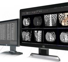 Partners HealthCare Chooses Visage 7 for Enterprise Imaging
