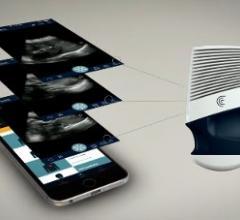 Clarius Mobile Health, C3, L7, wireless ultrasound scanners, FDA 510k clearance