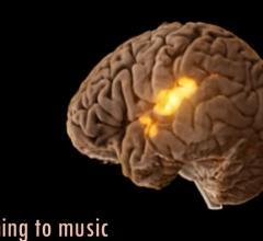 Fraunhofer MEVIS, real-time brain animation, MRI, CT