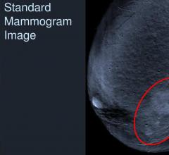 ACR Offers Revised Contrast Media in Imaging Manual