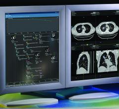 HealthMyne QIDS 3.0 Platform Addresses Incidental Findings Workflow