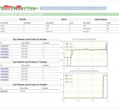 PACSHealth, NCI, National Cancer Institute, DoseMonitor, NCICT, CT radiation dose monitoring