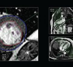 Pie Medical Imaging, Frost & Sullivan, technology leadership, CAAS, cardiovascular diagnostics