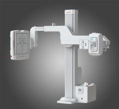 Rayence, RU-3000, U-arm, 1417 C-Series detectors, AHRA 2015