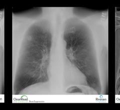 Riverain Technologies, ClearRead Bone Suppression, ClearRead Confirm, UCHealth, University of Colorado, chest X-ray, lung cancer detection