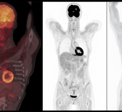Nuclear imaging scan showing very good tissue delineation. Scan performed on a Biograph Vision positron emission tomography/computed tomography (PET-CT) system from Siemens Healthineers.