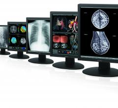 Sony 3D 4K OLED flat panel displays RSNA 2013
