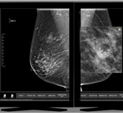 Three Palm Software, WorkStationOne, breast imaging workstation, RSNA 2016, version 1.8.2