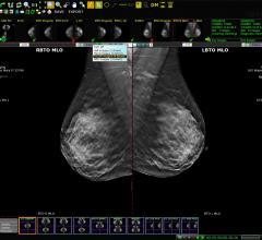 PACS, Remote Viewing Systems, RSNA 2015, Exa PACS, EHR PACS