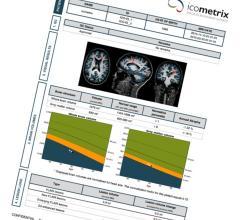 icometrix, icobrain, MRI brain scans, longitudinal measurements, RSNA 2016, FDA clearance