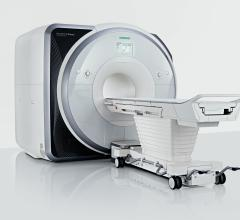 Siemens Receives FDA Clearance for Magnetom Prisma 3T MRI System