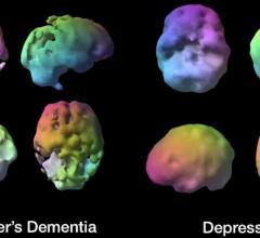 brain SPECT imaging, dementia, depression, Daniel G. Amen