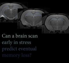 neuo imaging, MRI