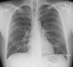 Patients whose cancer has not spread far past the lungs may benefit from targeting tumor sites with radiation or surgery after initial treatment, according to ASTRO study