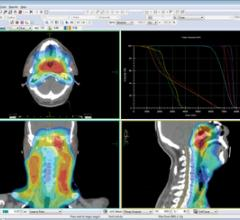 Differences between VMAT and tomotherapy help increase efficiency in radiation oncology