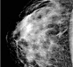 Making the Transition From Analog to Digital Mammography