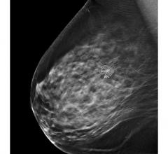 FDA Clears iCAD's ProFound AI for Digital Breast Tomosynthesis