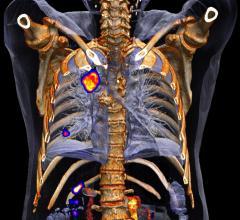 lung cancer, adenocarcinoma