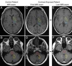 Study Finds No Evidence that Gadolinium Causes Neurologic Harm