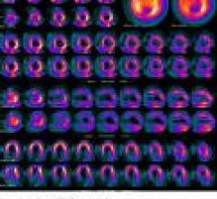 Cardiac PET May Benefit from Drop in SPECT Reimbursement