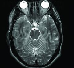 MRI, gadolinium contrast, Parkinsonism, nervous system disorder, Blayne Welk, Western University