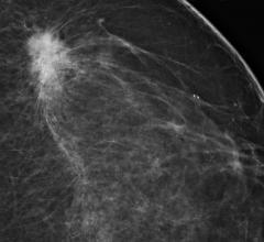 Navidea, Lymphoseek injection, breast cancer detction, scintigraphy, SNMMI 2016