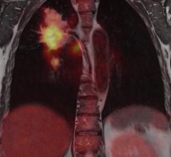 PET, positron emission tomography, genetically linked lung cancer, AAPM, big data